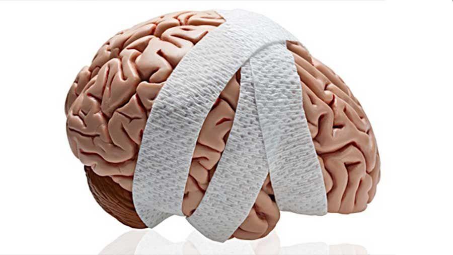 Los Mejores Abogados en Español de Lesiones Cerebrales Para Mayor Compensación en Santa Ana California